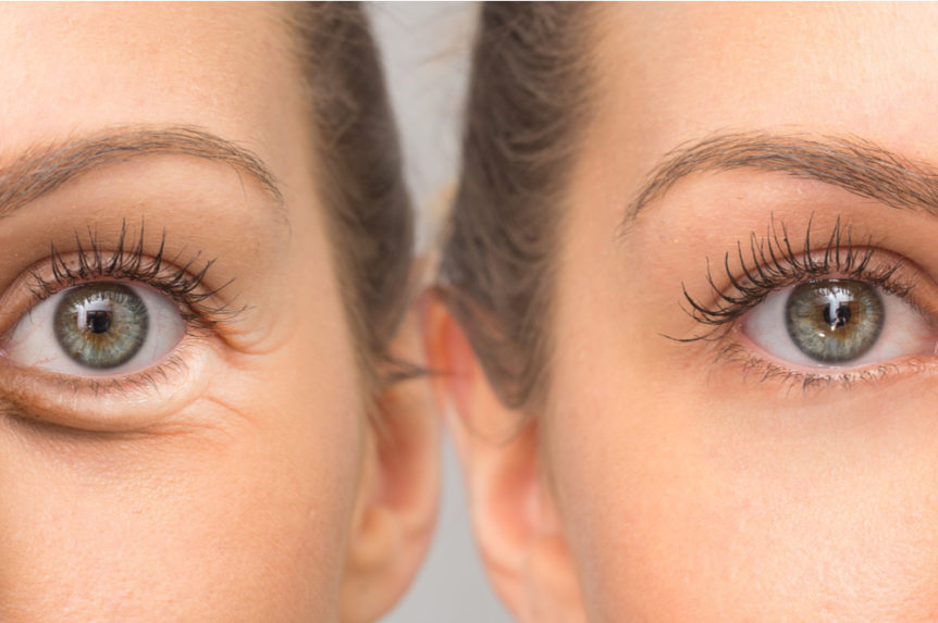 Under-Eye Bags: How to Deal with It